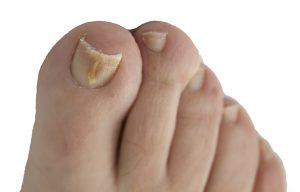 toenail-fungus-ad-pic